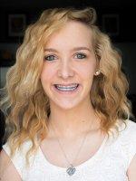 Dziewczyna z aparatem ortodontycznym
